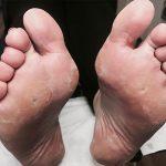 General Foot Maintenance