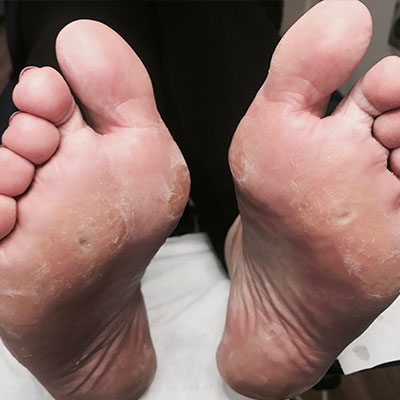 General Foot Maintenance