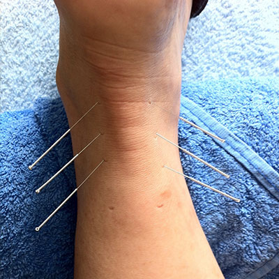 Acupuncture in the lower limb